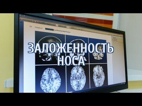 🔴 Онколог назвала симптомы рака, на которые никто годами не обращает внимания