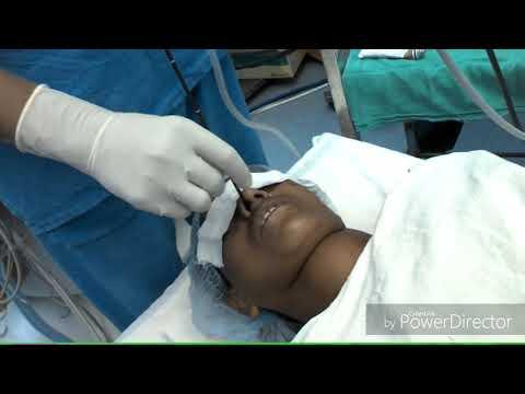 Fiber optic intubation