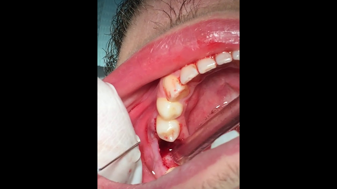 A dental extraction also referred to as tooth extraction exodontia exodontics or informally tooth pulling is the removal of teeth from the dental alveolus