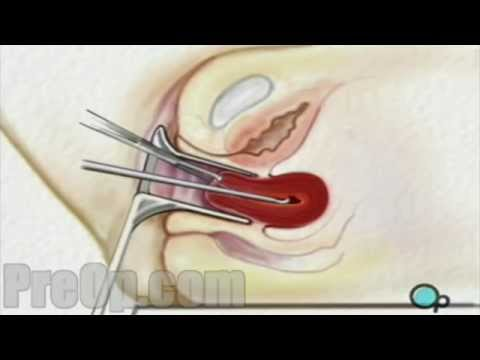 Dilation and Curettage D & C Surgery PreOp® Patient Engagement and Education