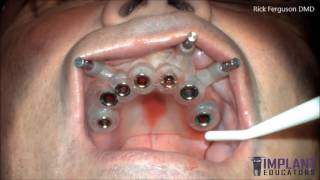 Live Guided Surgery - 7 Dental Implants in 40 Minutes -Full Video