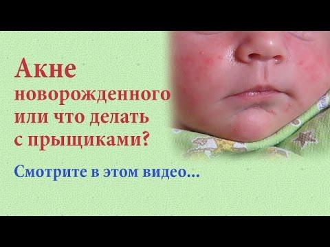 Внешность новорожденного Как выглядит новорожденный