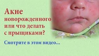Акне новорожденного или что делать с прыщиками?