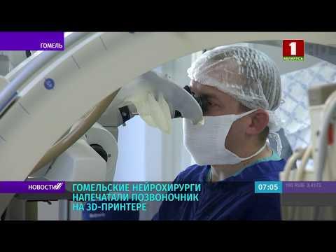 Гомельские нейрохирурги провели операцию с напечатанным на 3D-принтере позвоночником