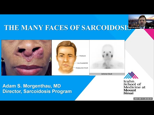 The Many Faces of Sarcoidosis