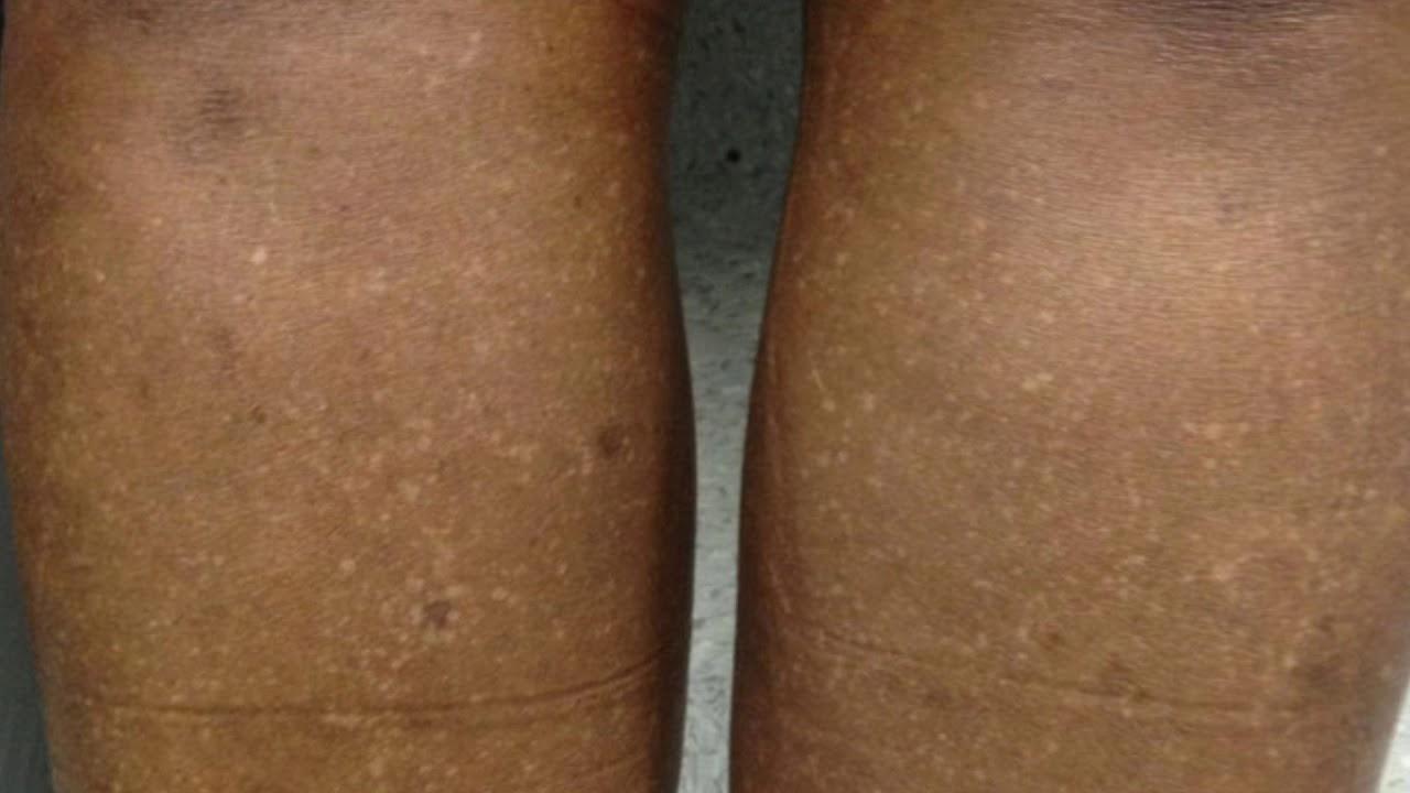 Les petites taches blanches sur la peau: Cause et Solution/ white dot on skin - YouTube