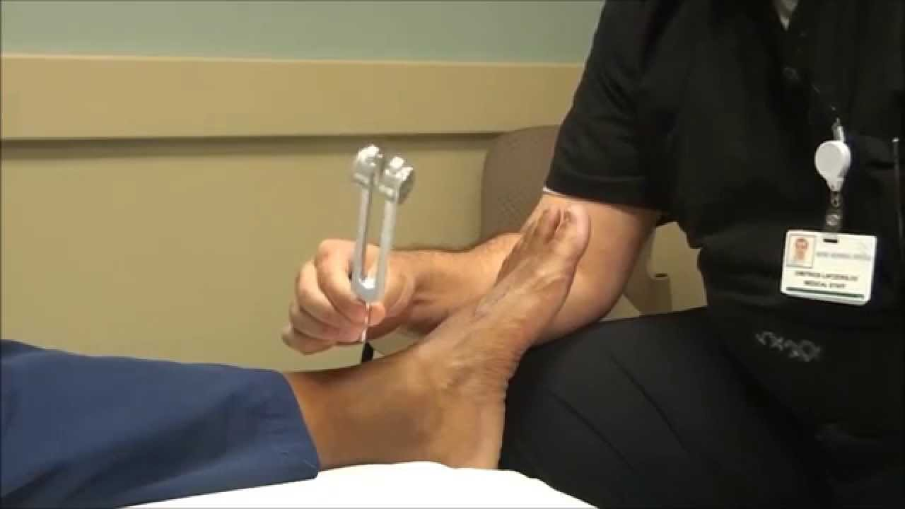 Vibration In Foot >> Neurologic Examination Of The Foot The 128 Hz Tuning Fork Test