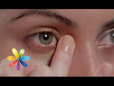 Темные круги под глазами причины - основные симптомы