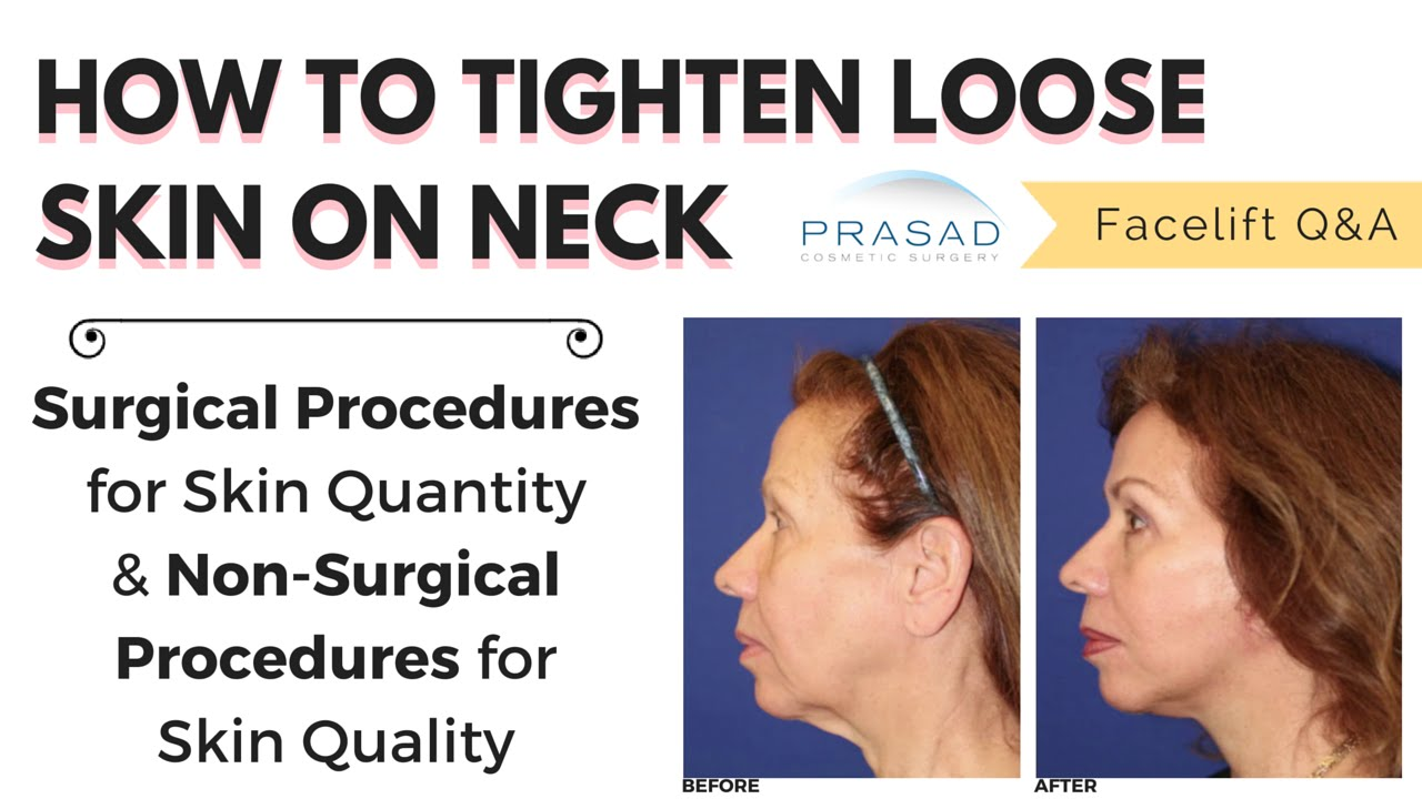 Can Surgery Fix My Sagging Neck
