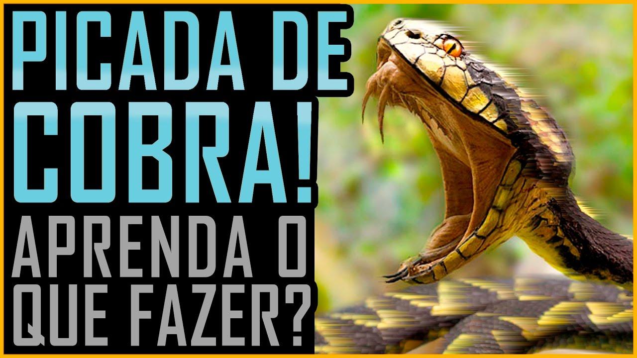 Resultado de imagem para Picada de Cobra - O que Fazer - (Butantan / Venenosa / Peçonhenta)