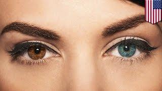 Comment changer la couleur de ses yeux en 20 secondes avec un laser