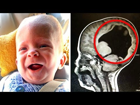 Baby Was Born With 'No Brain' 3-Years-Later, Doctor Scans And Discovers A Miracle