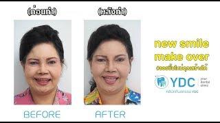 YDC Makeover คางยาวขึ้นและริ้วรอยจางลงได้ด้วยฟันการใส่ฟัน