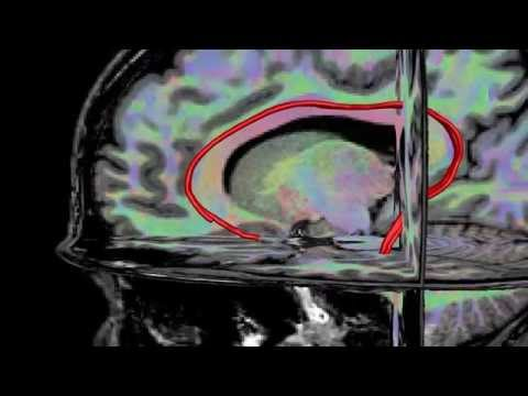 Diffusion MRI combined with T1 weighted MRI