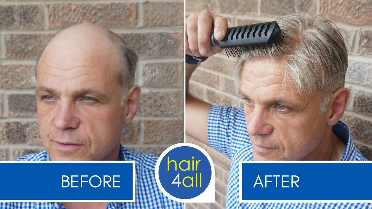 Before and After Results of our Non Surgical Hair Replacement System for Men Women  - YouTube f9df7c4f49d7