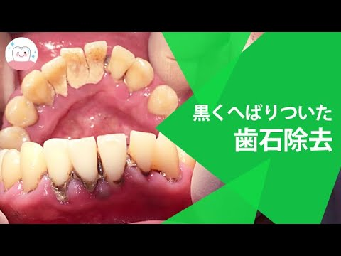 取り 歯石