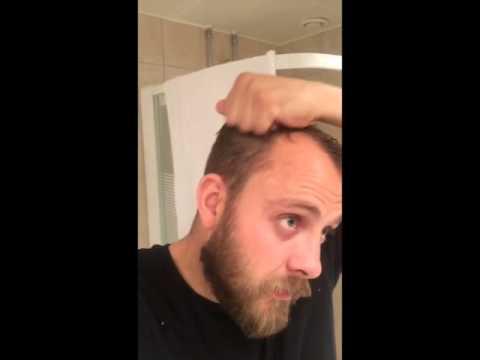 frisyr tunt hår kille