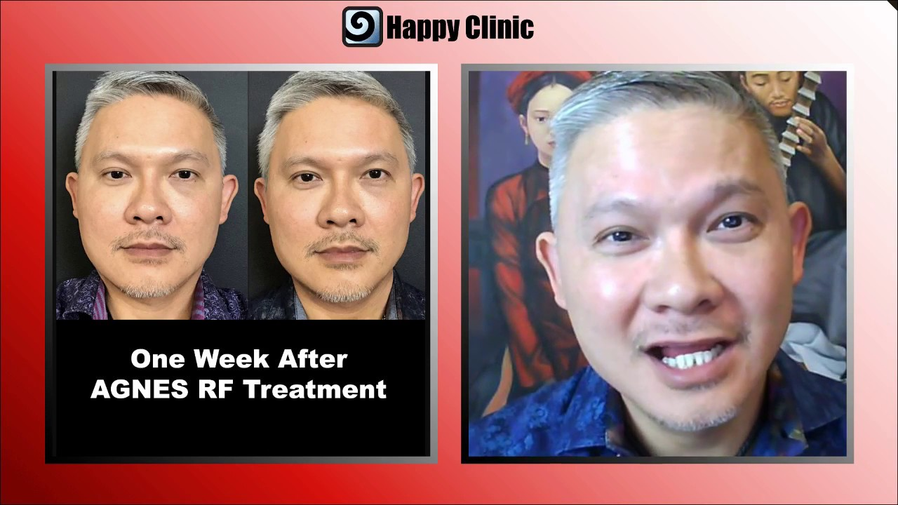 AGNES RadioFrequency (RF) treatment for fat melting and jawline definition