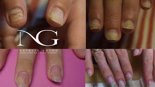 Вопрос/ответ: покрытие гель лаком, проблемные ногти / Manicure of problem nails