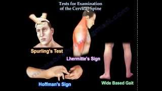 Tests For Examination Of The Cervical Spine - Everything You Need To Know - Dr. Nabil Ebraheim