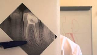 видео Лечение чувствительных зубов в домашних условиях