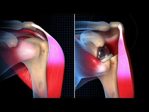 Exactech Reverse Shoulder Biomechanics Animation