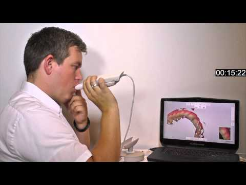 Insane speed-scanning with 3Shape TRIOS 3 intraoral scanner