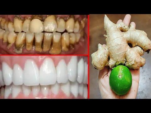 แก้ฟันเหลืองใน 2 นาที คราบหินปูน คราบชากาแฟ หลุดออกทันที แก้ปวดฟัน แก้เหงือกอักเสบ ฟันขาวจากธรรมชาติ