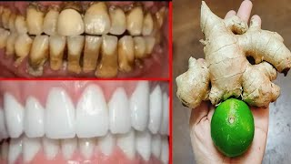 Solve yellow teeth in 2 minutes, plaque, tea and coffee stains relieve toothache Natural white teeth
