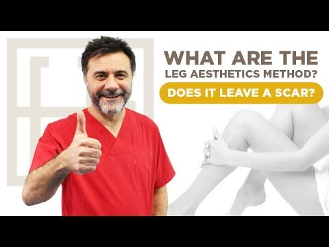 What are the Leg Aesthetics Method? Does It Leave a Scar? - YouTube