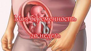 20 неделя беременности: фотография УЗИ и живота