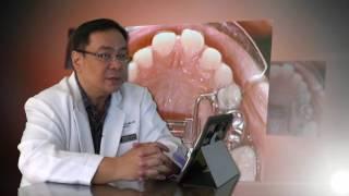 Advanced Module 9 - Non Extraction Orthodontics