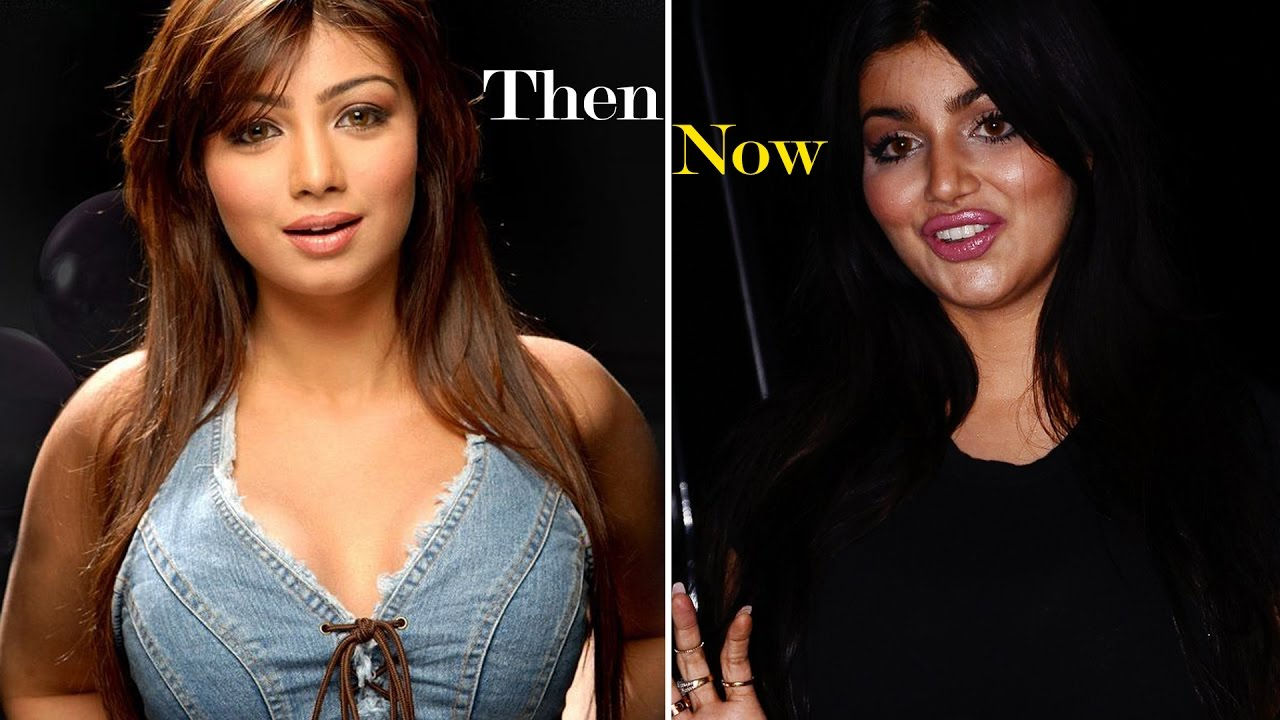 Ayesha Takia S Is Almost Unrecognizable After Plastic