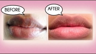 One of farahdhukai's most viewed videos: How to Lighten Dark Lips Naturally