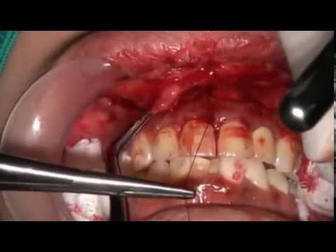 gummy teeth surgery