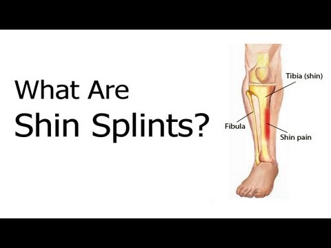 what are shin splints? - youtube, Human Body