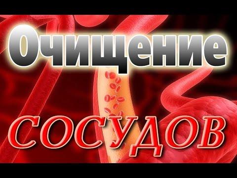 Атеросклероз. Лечение атеросклероза