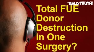 The Bald Truth - November 8th, 2019 - FUE Donor Destruction
