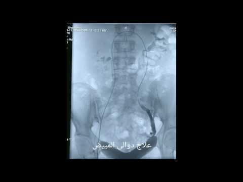 Pelvic Congestion Syndrome Treatment | Interventional Radiology