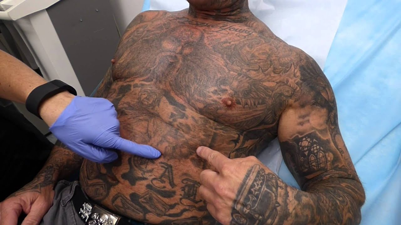 Massive Chest Tattoo Removal at Dr. Tattoff - YouTube