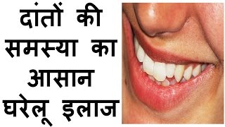 Teeth problems and solutions in hindi dental problems bleeding gums tooth pain toothache