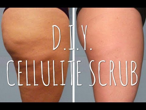 Coffee Body Scrub | How To Get Rid Of Your CELLULITE At Home NATURALLY | ItsAllAboutSaw
