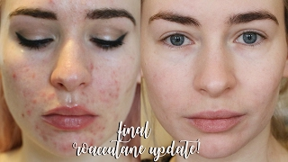 One of Katie Snooks's most viewed videos: FINAL 8 MONTH ROACCUTANE UPDATE!