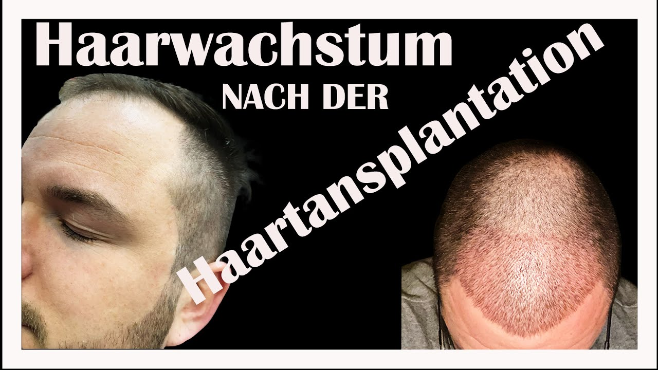 Haartransplantation So Wachsen die Haare Besser ! - YouTube