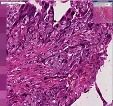 Choriocarcinoma Uterus Histopathology Uterus-...