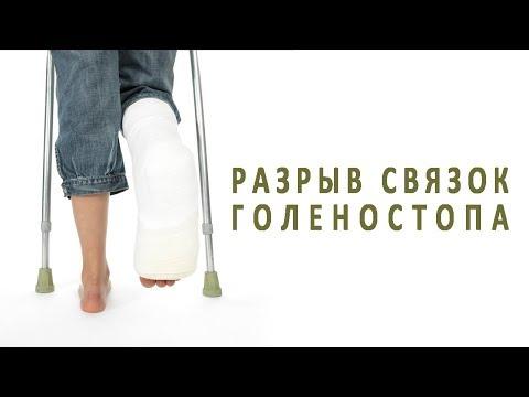 Как долго заживают связки на ноге