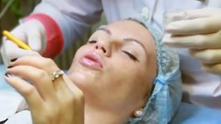 Химический пилинг лица. Beauty Ksu(С помощью химического пилинга можно удалить верхний слой кожи. Химический пилинг способствует выработке..., 2015-01-14T17:11:49.000Z)