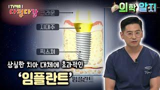 '의학 알지' 임플란트 X 알지남의 궁금타파 / KBS…