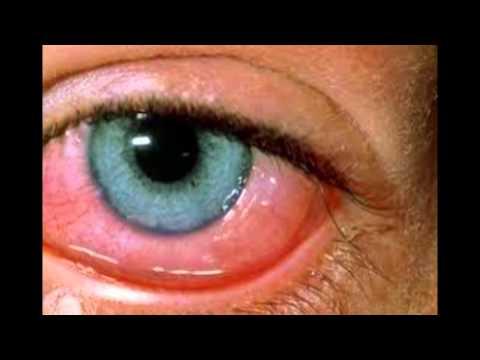 RED eyes health problems