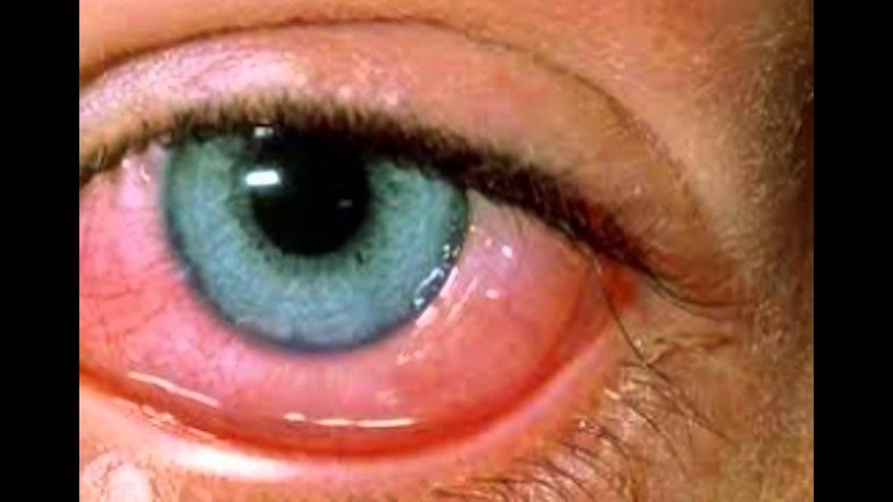 Dog Bloodshot Eyes At Night